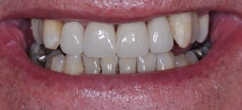 After Veneers Treatment Smile Rooms