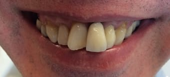 Before veneers Treatment Smile Rooms