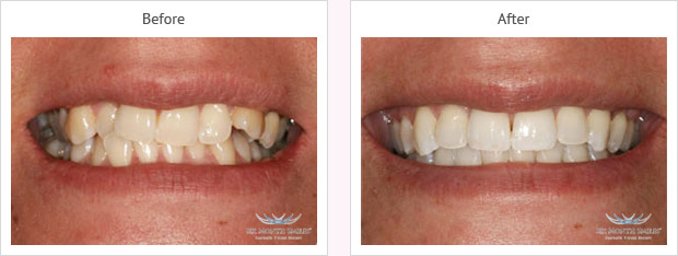 Six month smile before and after case 4 Kent