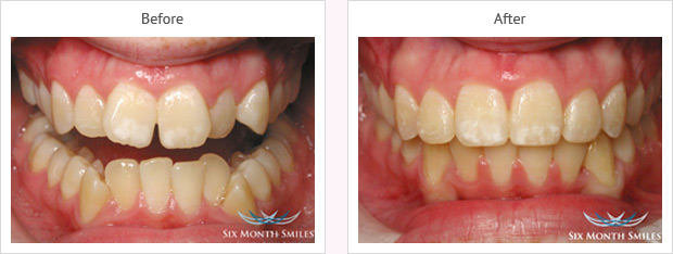 Six month smile before and after case 9