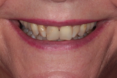Before Smile Makeover Treatment Smile Rooms