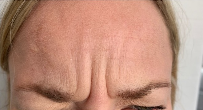 Forehead frown lines before botox - Smile Rooms, Windsor Town