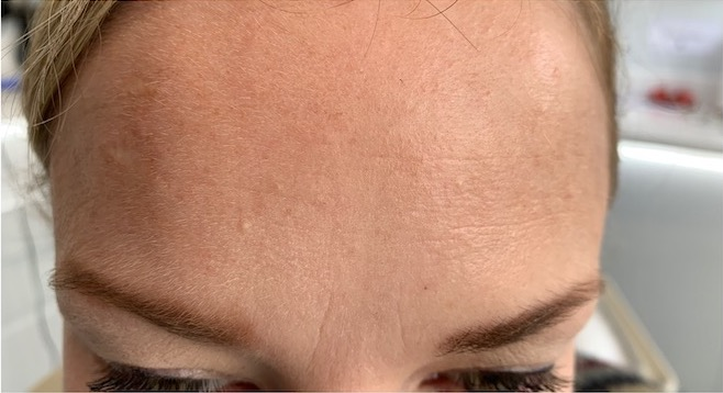 Forehead frown lines after botox - Smile Rooms, Windsor Town