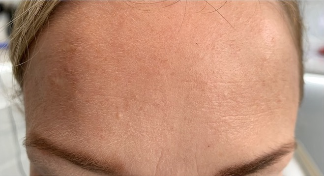 Forehead after botox - Smile Rooms, Windsor Town
