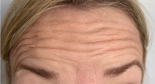 Forehead before botox- Smile Rooms, Windsor Town