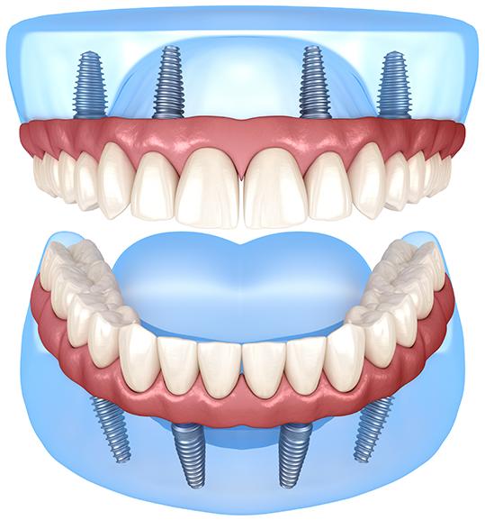 All On 4 Dental Implants Windsor