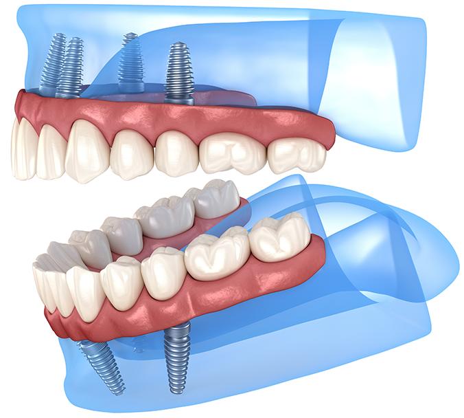 dental implants Maidenhead