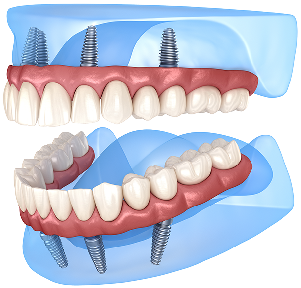Same Day Teeth Windsor With Dental Implants
