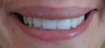 After Veneers Treatment Smile Rooms