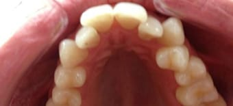 Before cosmetic Treatment Smile Rooms