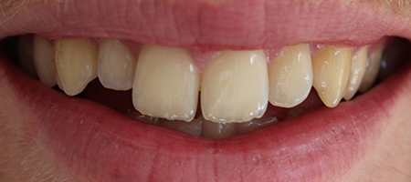 Before Invisalign Treatment at Smile rooms In Windsor