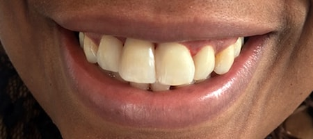 After cosmetic Treatment Smile Rooms