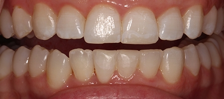 After Invisalign Treatment Reading Smiles