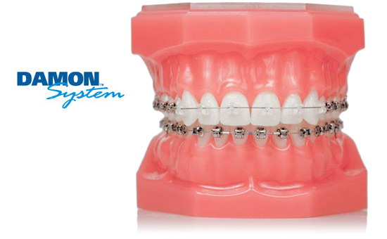Damon braces Windsor Dentist
