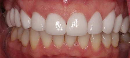 After Smile Makeover Treatment Smile Rooms