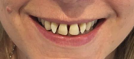 Before Invisalign Treatment Reading Smiles