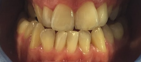 Before Invisalign Treatment Reading Smiles
